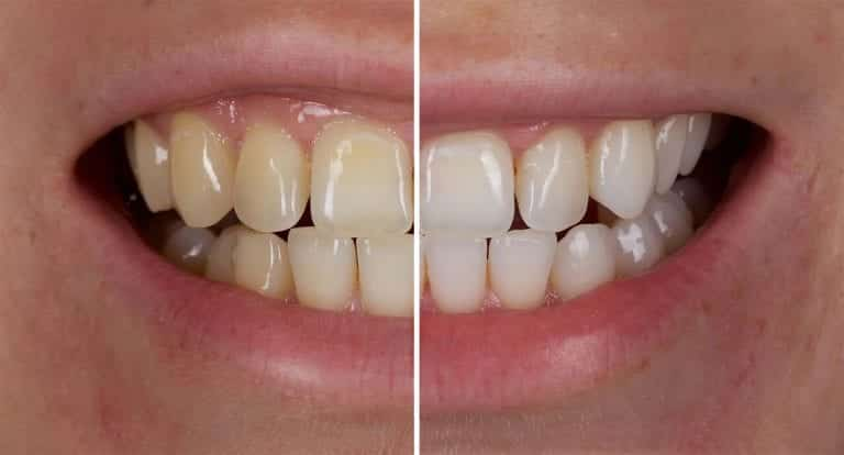 teeth-whitening-Jason-smithson