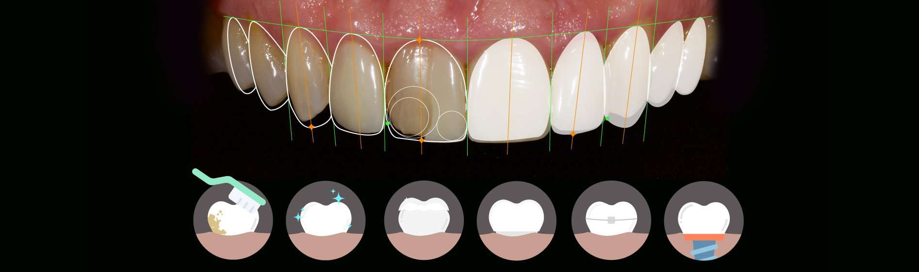 How Long Does Cosmetic Dentistry
